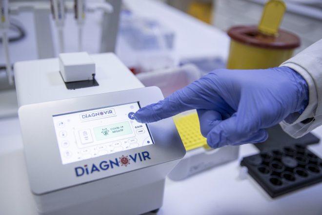Koronavirüs teşhisini 10 saniyeye düşüren buluş: Diagnovir