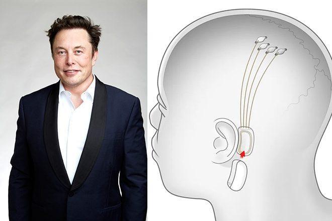 Elon Musk müziği direkt beynimize aktaracak çip geliştiriyor